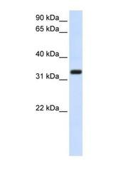 NBP1-69489 - TMEM66 / XTP3