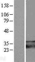 NBL1-17098 - TMEM66 Lysate