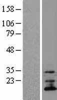 NBL1-17101 - TMEM70 Lysate