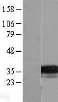 NBL1-17103 - TMEM74 Lysate
