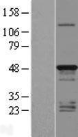NBL1-17104 - TMEM79 Lysate