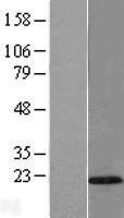 NBL1-17105 - TMEM80 Lysate