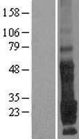 NBL1-17109 - TMEM9 Lysate