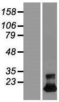NBL1-17110 - TMEM92 Lysate
