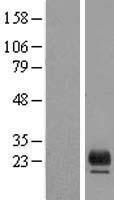 NBL1-17112 - TMEM98 Lysate