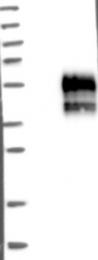 NBP1-81164 - TMIGD2