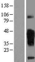 NBL1-17114 - TMIGD2 Lysate