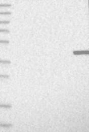 NBP1-85240 - TMPRSS3