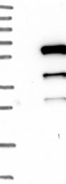 NBP1-82608 - TMPRSS4
