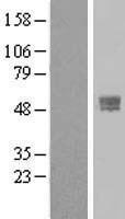 NBL1-17125 - TMPRSS4 Lysate