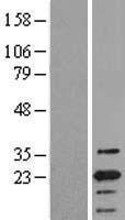 NBL1-15016 - TMS1 Lysate