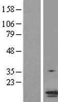 NBL1-15017 - TMS1 Lysate