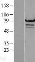 NBL1-17130 - TMTC1 Lysate