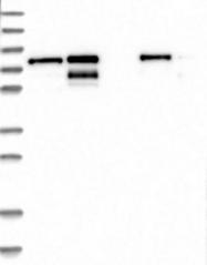 NBP1-85027 - TMTC2