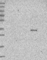 NBP1-81129 - TMUB2