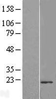 NBL1-17133 - TMUB2 Lysate