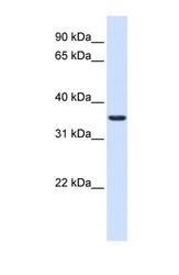 NBP1-69586 - TXNDC14 / TMX2