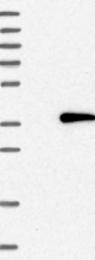 NBP1-87305 - TXNDC14 / TMX2