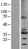 NBL1-17467 - TMX2 Lysate