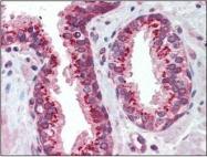 NBP1-50538 - CD120a / TNFR1