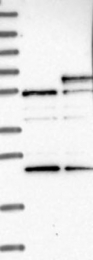 NBP1-88140 - CD120a / TNFR1
