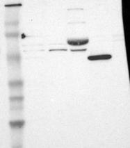 NBP1-88139 - CD120b / TNFR2