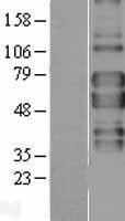 NBL1-17155 - TNF Receptor II Lysate