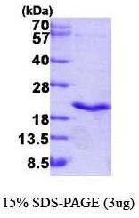 NBP1-41147 - TNF-beta / Lymphotoxin-alpha
