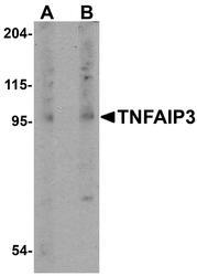 NBP1-77024 - TNFAIP3