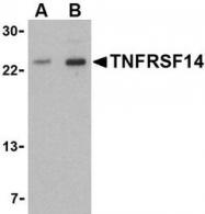 NBP1-76690 - TNFRSF14 / HVEM