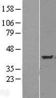 NBL1-17174 - TNIP3 Lysate