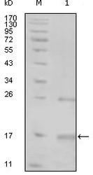NBP1-47379 - TNK1