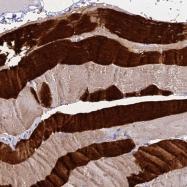 NBP1-86205 - Skeletal muscle Troponin C