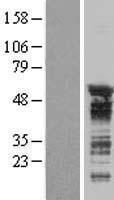 NBL1-17183 - TNRC4 Lysate