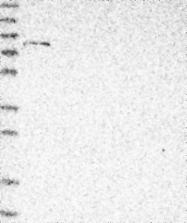 NBP1-85387 - Tensin-4 / TNS4