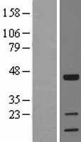 NBL1-17185 - TOB1 Lysate