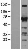 NBL1-17187 - TOE1 Lysate