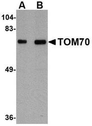 NBP1-77342 - TOMM70A