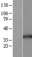 NBL1-17191 - TOMM34 Lysate