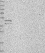 NBP1-89237 - Torsin-3A (TOR3A)