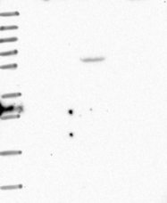 NBP1-83642 - TPCN1