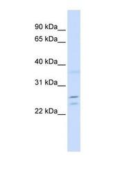 NBP1-56457 - TPD52