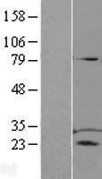 NBL1-17212 - TPD52 Lysate