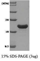 NBC1-18500 - Tumor protein D53 (TPD52L1)