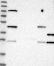 NBP1-83151 - Thiamine pyrophosphokinase 1 (TPK1)