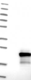 NBP1-88430 - TPPP2