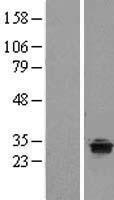 NBL1-17227 - TPRG1 Lysate