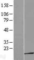 NBL1-17228 - TPRKB Lysate