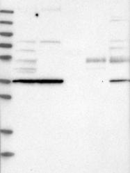 NBP1-86023 - TPST2