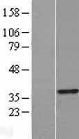 NBL1-17238 - TRADD Lysate